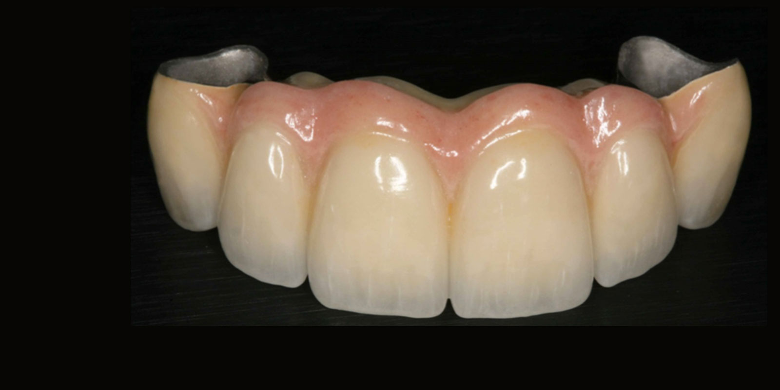 Fixed Prosthodontics Foundation For Oral Facial