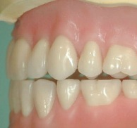 Dissertation Dental Occlusion
