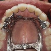 Removable Partial Dentures Surveyed Crown Amp Combined