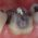 Fixed Prosthodontics - Tooth preparation guidelines for complete coverage metal crowns